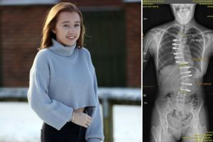 Read more about Heartbreaking setback for girl with S-shaped spine who underwent life-changing surgery in Germany