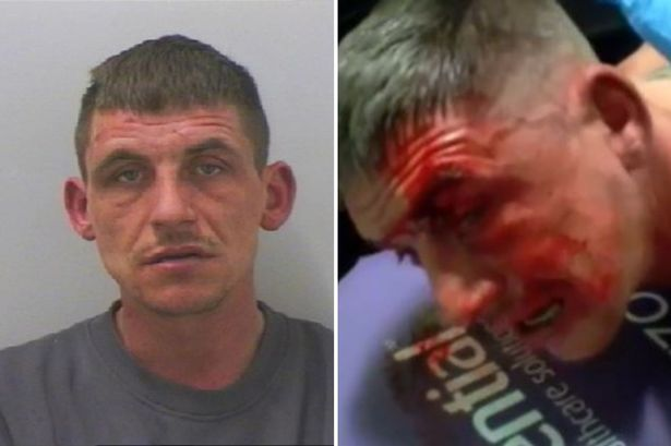 Racist thug jailed after spitting at officers and trying to bite nurses